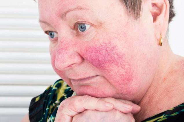Hautpflege bei Rosacea